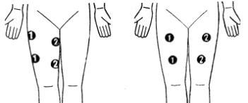 Схема наложения электродов при миостимуляции фото 731